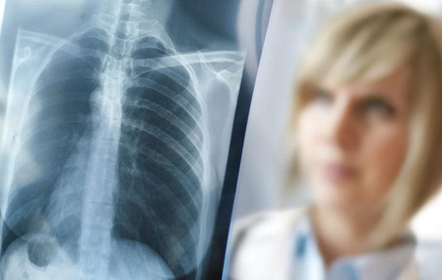 Tüdőszűrés
